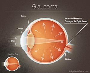 glaucoma eye doctor in cincinnati